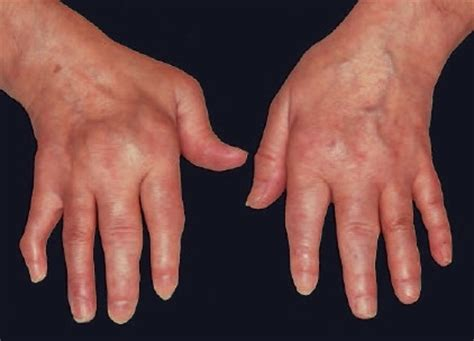 résumé definition rheumatoid arthritis symptoms causes diagnosis and