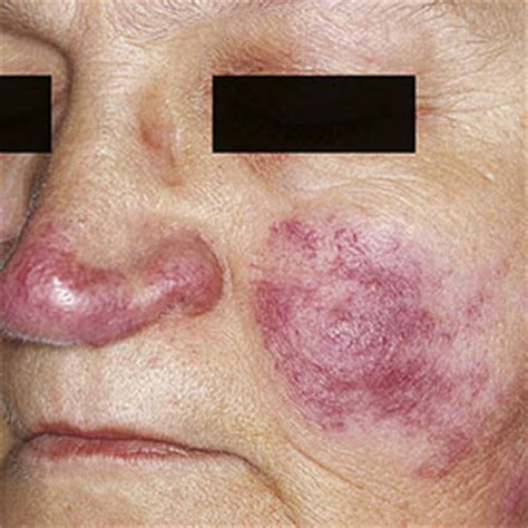 lupus and arthritis what s the connection