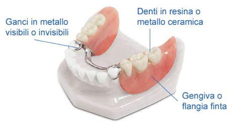 ponti mobili denti mancanza di pi 249 denti la protesi removibile parziale o