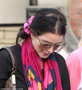 is weave hair good forbald spots helen flanagan displays bald patch from excessive use of