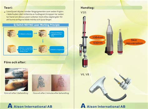 laser x tattoo removal removal laser v6 aison international ab