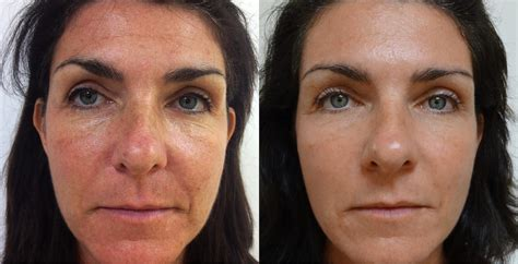 laser rosacea treatments philadelphia suburbs strellapa