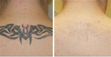 r20 tattoo removal before and after laser removal laser room
