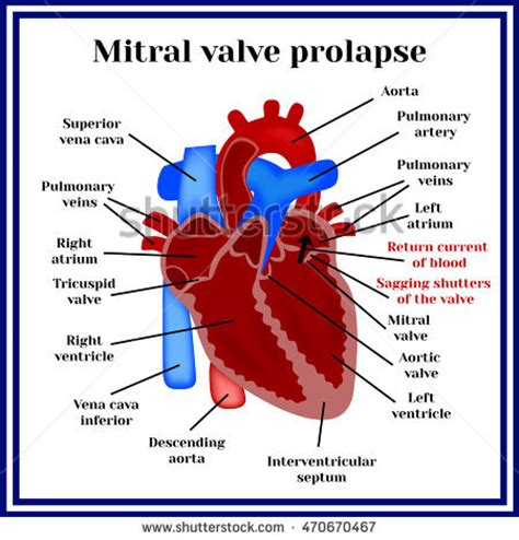 prolapse diagram vector diastole systole filling pumping human stock vector