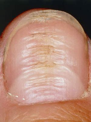 Horizontal Ridges On Toenails Pictures the bloomin what your nails say about your health