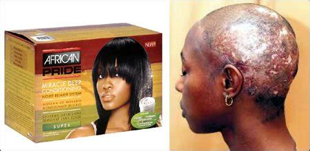 best relaxer for american hair the dependency of african women on hair relaxers is truly