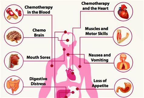 Should I Detox After Chemo by Dealing With The Side Effects Of Chemotherapy And Radiation