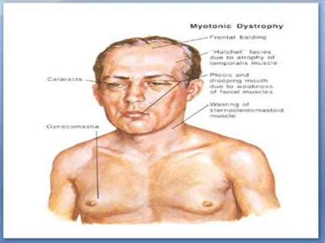 Parsel Dm1 1 medifit biologicals myotonic dystrophy