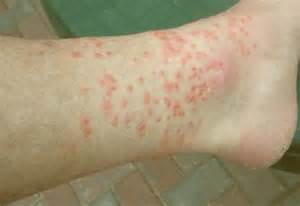 chigger bite photos symptoms treatment remedies