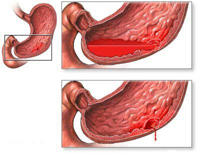 Obat Herbal Gejala Maag obat maag herbal maag adalah gejala penyakit yang