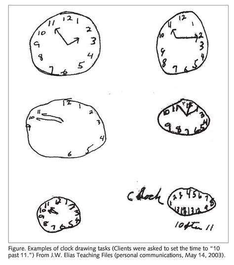 clock drawing test schizophrenia drawing test www pixshark images