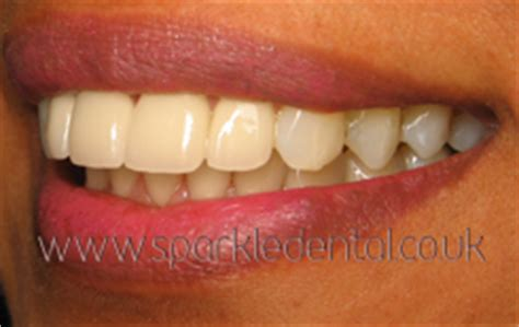 protruding teeth     protruding