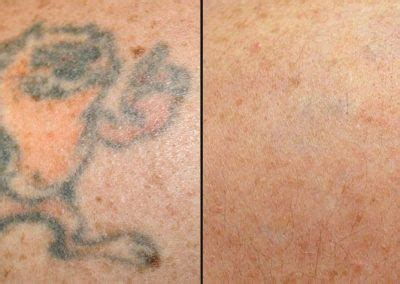 tattoo removal nh laser ink picosure laser removal specialists