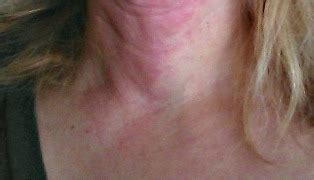 itchy rash on face and neck itchy neck rash pictures photos