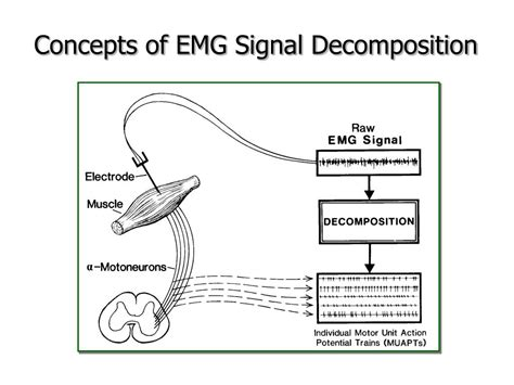 interference pattern analysis emg ppt dqemg decomposition based quantitative emg