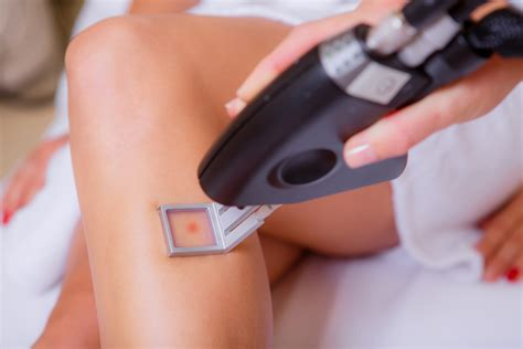 Laser Hair Removal Different Types laser hair removal for different skin and hair types