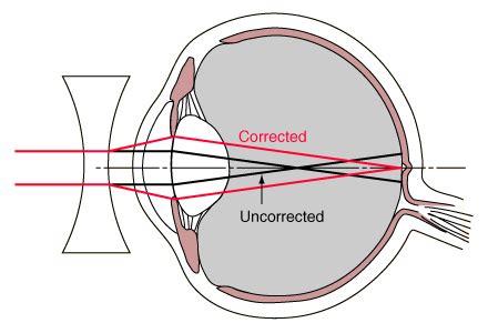 myopia the human eye