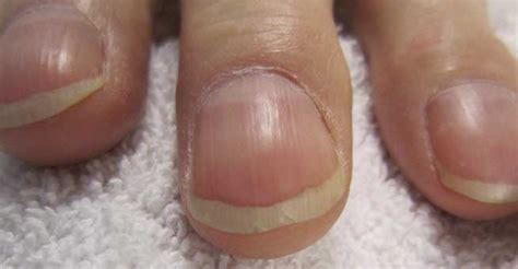 beaus lines how to recognize a beau line fingernail beau s lines causes symptoms and cure