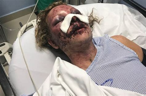 delaware mother brutally beaten  punta cana resort