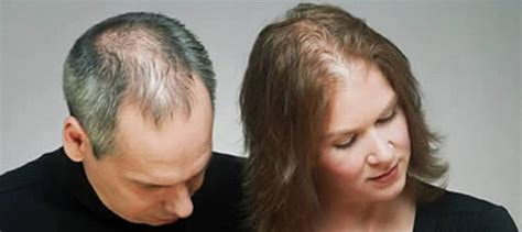 what causes hair loss in women over 50 what causes hair loss in 60 natural home remedies for