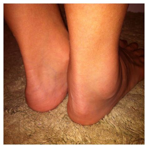 foot and ankle swelling after c section arthritis swollen ankle pictures to pin on pinterest