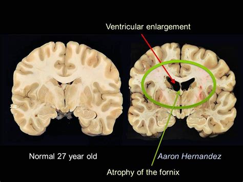 can baby swings cause brain damage photos of aaron hernandez s brain showing significant cte