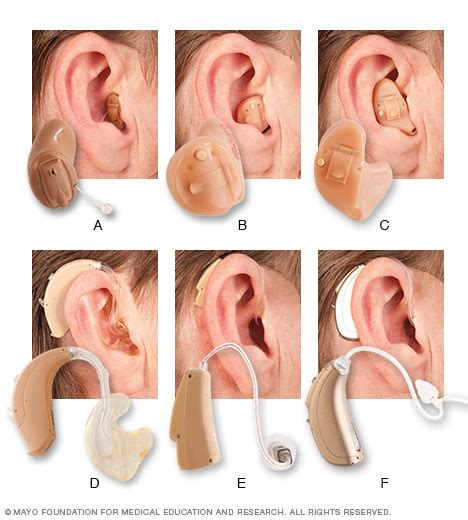 hearing aid types hearing loss disease reference guide drugs com
