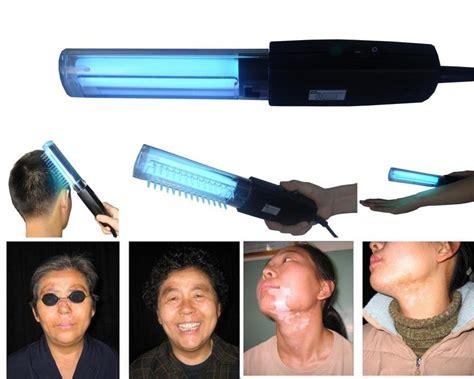 uv l for skin treatment body skin treatment device 311nm narrowband uv light on