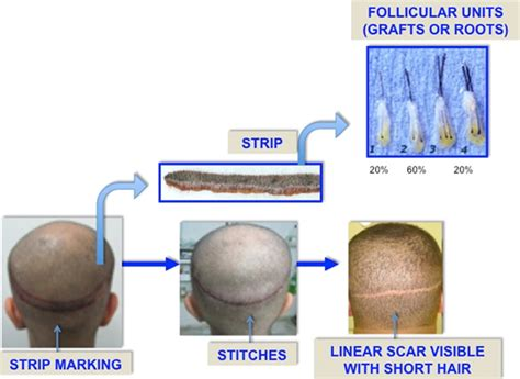 fut hong kong hair transplant fut hong kong hair transplant image blog fut strip