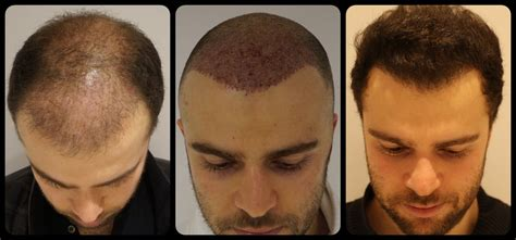 neograft in turkey the smart trick of neograft hair transplant phoenix that