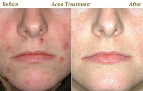Skincare For The Treatment Of Acne by How To Determine The World S Best Skin Maintenance Systems