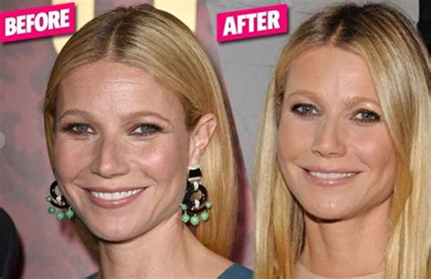what plastic sirgery has chris evert had juvederm botox for gwyneth paltrow