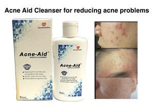 Shineskin Toner Normal Acne stiefel acne aid gentle cleanser liquid pimples soap normal skin wash 5011091111594 ebay