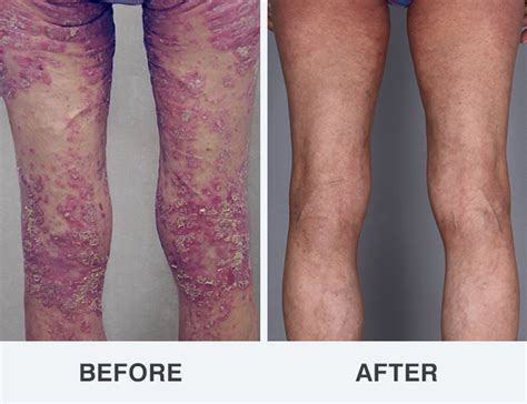 psoriasis treatment photos soderstrom skin institue