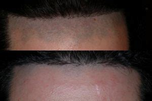 forehead hair removal for men remove hair from lip and chin with laser hair removal