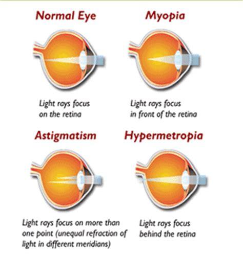 refractive errors | dr. bruce c. henderson