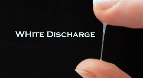 white discharge from pussy white discharge what does it mean