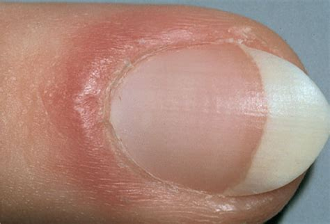swollen toenail bed pictures of what your nails say about your health ridges