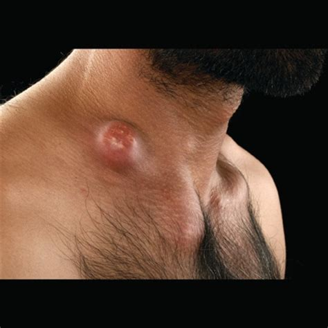 tuberculosis lymphadenitis | this picture of lymphadenitis