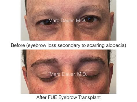 eyebrow transplant spiky hairs fue eyebrow transplant in a male patient with scarring