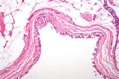 pilonidal cyst histology cyst wikiwand