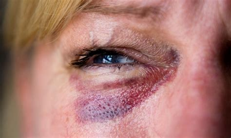 domestic violence to say emotional abuse is as bad insults every domestic violence to say emotional abuse is as bad