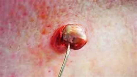how to remove engrown hair onunderwear line ingrown hairs at underwear line ingrown hair removal