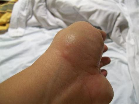 how do bed bug bites look how do bed bug bites look on wrist how do bed bugs look