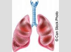 Smokers lungs Clip Art and Stock Illustrations. 3,070 ... Lungs After Smoking Clip Art