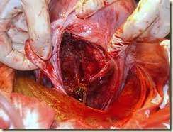 the learner one more rupture uterus and more