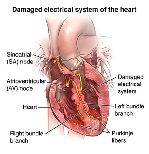 swinging heart syndrome wolff parkinson white syndrome health encyclopedia
