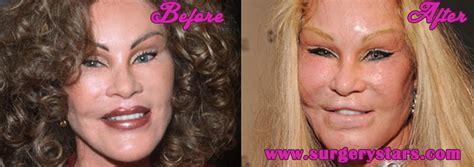 celebrity plastic surgery blog celeb surgery pics bloggerim worst celebrity plastic surgery before and