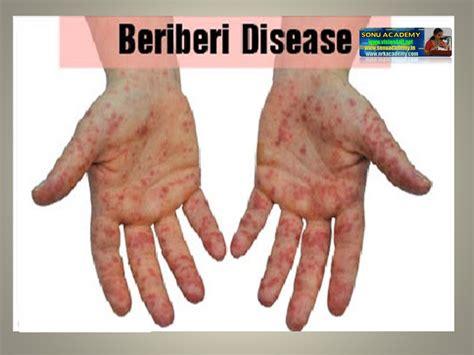 vitamin b carbohydrates sonu academy deficiency diseases text