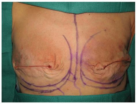 breast reconstruction following mastectomy breast reconstruction prosthetic techniques plastic